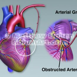 MID CAB Coronary Artery Bypass (image available for licensing)