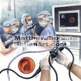 Flexible Bronchoscopy (Transparent Watercolor) image available for license
