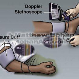 Doppler Stethoscope (Photoshop)