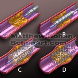 Stent Placement (Lightwave 3d & Photoshop)  image available for license