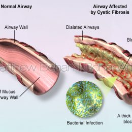 Cystic Fibrosis (Lightwave 3d and Photoshop)